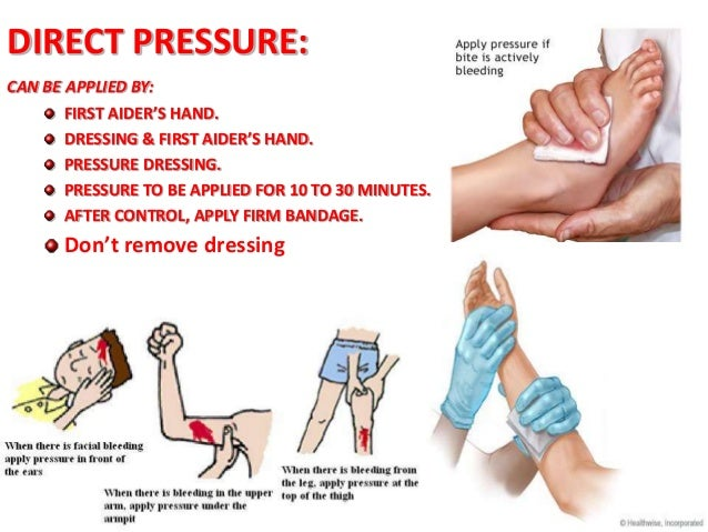 Image result for pressure bandage for bleeding