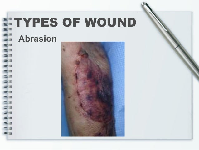 Abdominal Wound Infection