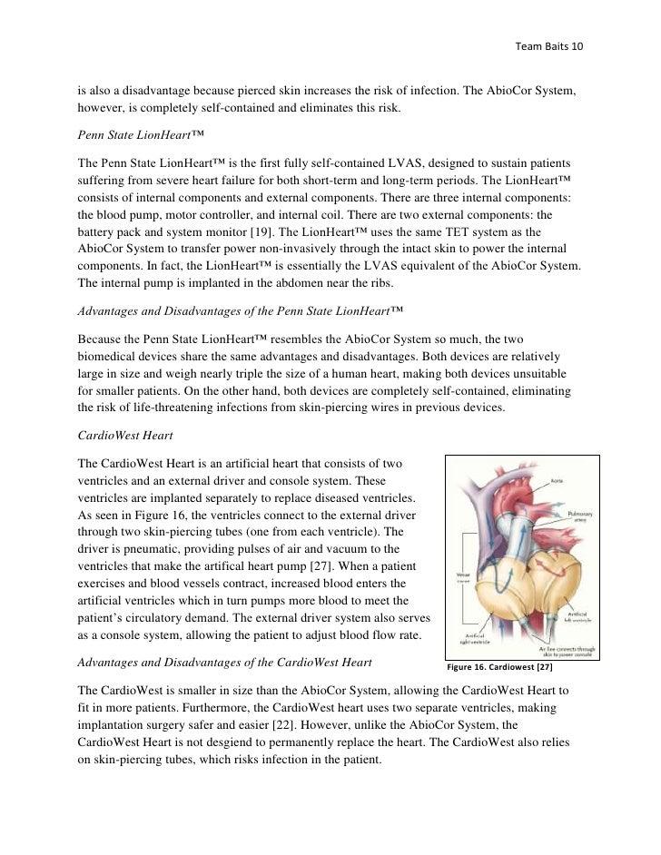 abiocor heart system