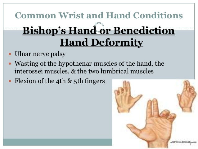 Wrist And Hand A Review