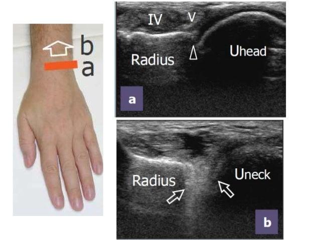 MSK US of Wrist & Hand