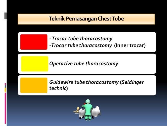 TeknikPemasanganChestTube -Trocar tube thoracostomy -Trocar tube thoracostomy (Inner trocar) Operative tube thoracostomy G...