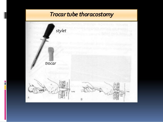 Trocartubethoracostomy stylet trocar