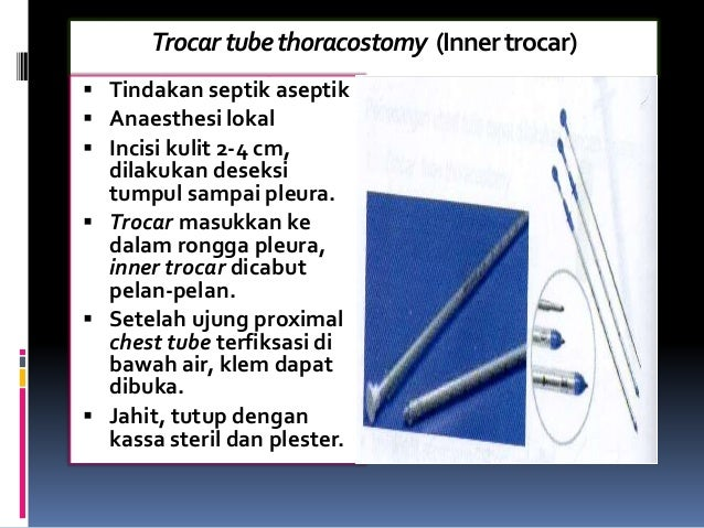 Trocartubethoracostomy (Innertrocar)  Tindakan septik aseptik  Anaesthesi lokal  Incisi kulit 2-4 cm, dilakukan deseksi...