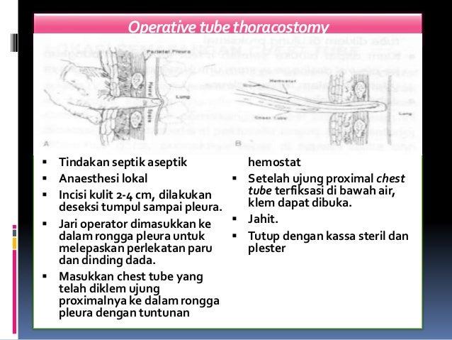 Operativetubethoracostomy  Tindakan septik aseptik  Anaesthesi lokal  Incisi kulit 2-4 cm, dilakukan deseksi tumpul sam...