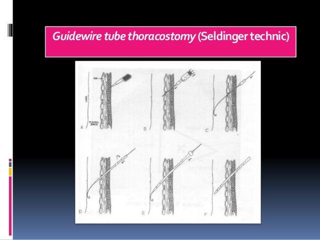 Guidewiretubethoracostomy(Seldingertechnic)