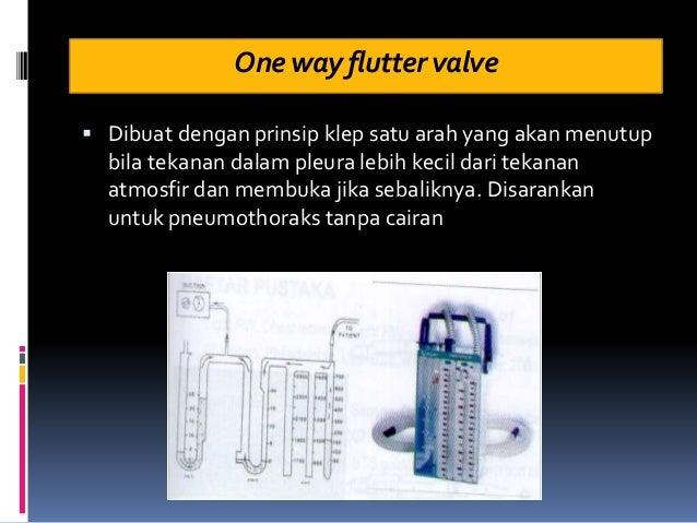 Onewayfluttervalve  Dibuat dengan prinsip klep satu arah yang akan menutup bila tekanan dalam pleura lebih kecil dari tek...