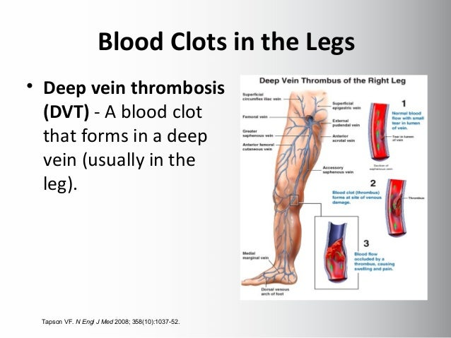 Blood Clots In The