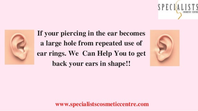 If your piercing in the ear becomes a large hole from repeated use of ear rings. We Can Help You to get back your ears in ...