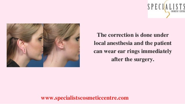 www.specialistscosmeticcentre.com The correction is done under local anesthesia and the patient can wear ear rings immedia...