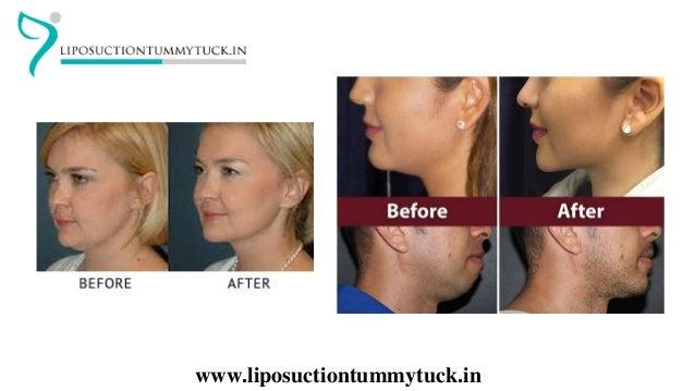 Double Chin Liposuction In Mumbai | Best Cosmetic Surgeon In India