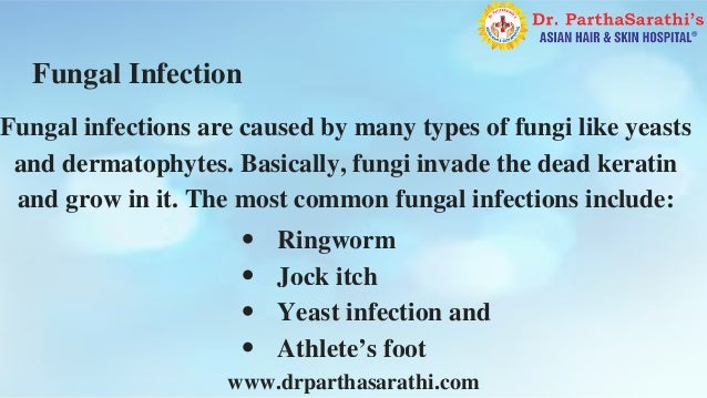 Yeast infection specialist