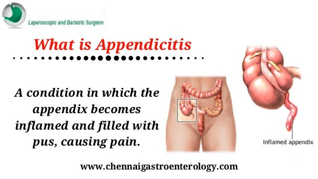 treatment for appendicitis in chennai | laparoscopic treatment in ind…, Human Body