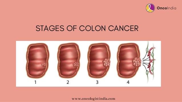 Colon Cancer Treatment In Bangalore Colon Cancer Treatment Options
