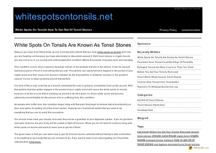 White Spots On Tonsils    whitespotsontonsils.net White Spots On Tonsils How To Get Rid Of Tonsil Stones                  ...