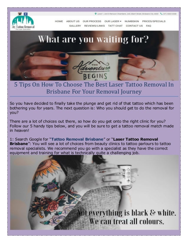 Do you want to remove tattoos safely?