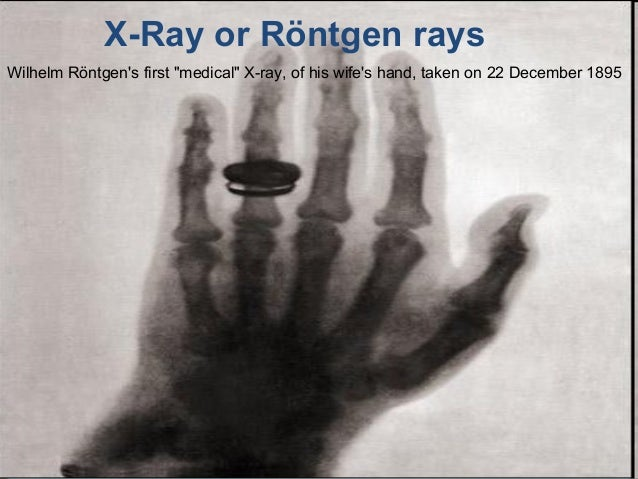 "• Presentación X-Ray or Röntgen rays Wilhelm Röntgen's first ""medical"" X-ray, of his wife's hand, taken on 22 December 1895"