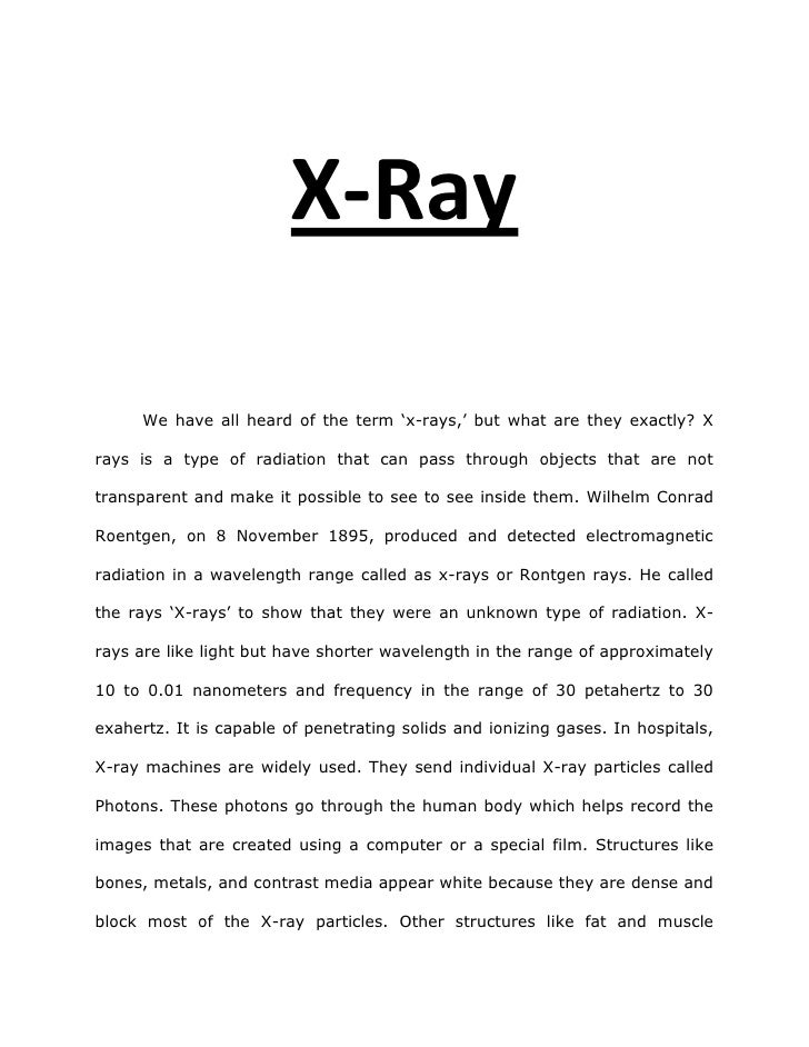 X-Ray<br />We have all heard of the term 'x-rays,' but what are they exactly? X rays is a type of radiation that can pass ...