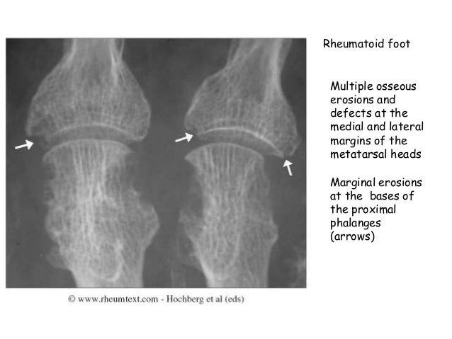 X ray changes in different types of arthritis