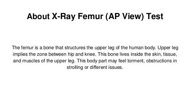 X ray femur (ap view) test X Ray Femur 2 Views