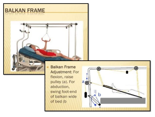 X-RAY , SPECIAL ORTHOPEDIC BEDS
