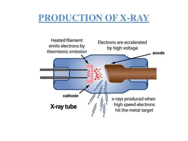 X Rays Production Animation X ray ppt