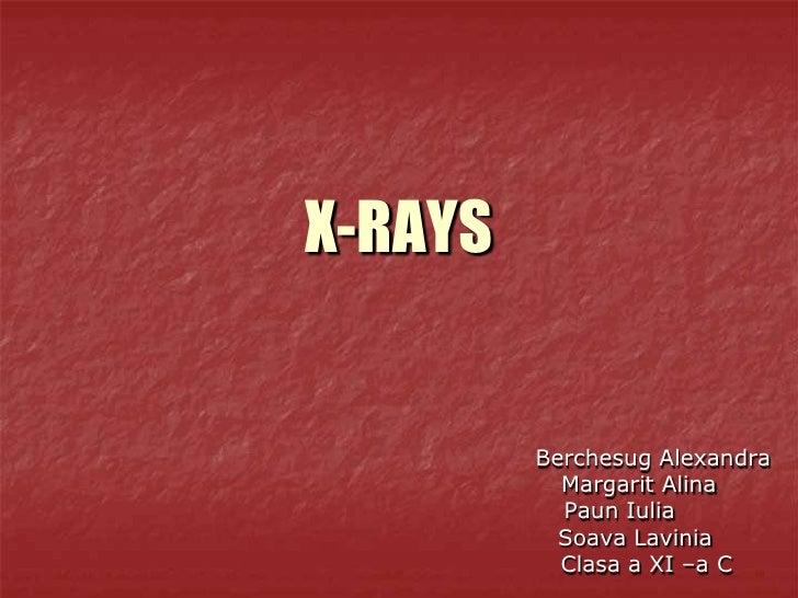 X-RAYS         Berchesug Alexandra           Margarit Alina           Paun Iulia           Soava Lavinia           Clasa a...