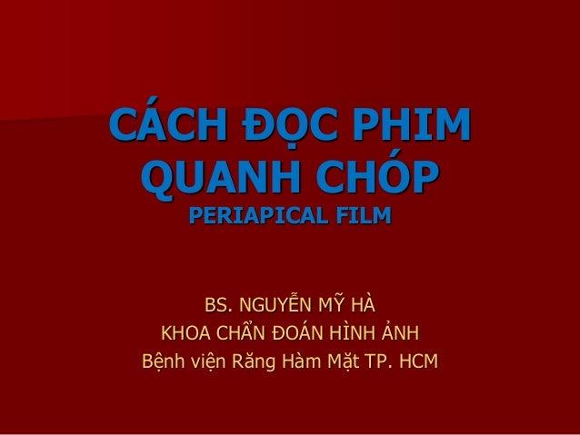 CÁCH ĐỌC PHIM QUANH CHÓP PERIAPICAL FILM BS. NGUYỄN MỸ HÀ KHOA CHẨN ĐOÁN HÌNH ẢNH Bệnh viện Răng Hàm Mặt TP. HCM