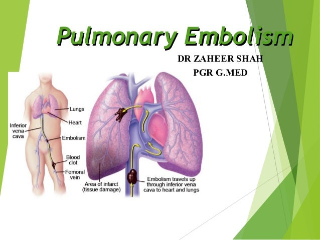 Xaheer shah...pulmonary embolism