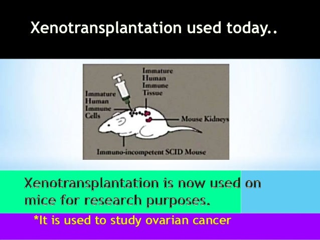 the risks and benefits of xenotransplantation Xenotransplantation is the transplantation of living cells, tissues or organs from  one species to  the risk of cross-species disease transmission is decreased  because of their increased phylogenetic distance from humans they are  the  patient should understand the risks and benefits of such a transplantation  however.