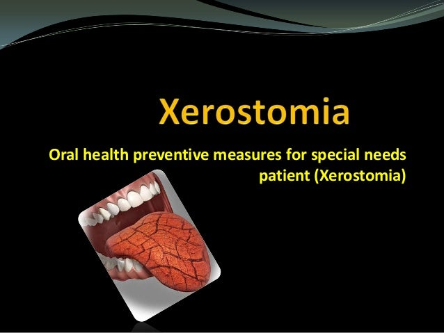 Oral health preventive measures for special needs patient (Xerostomia)