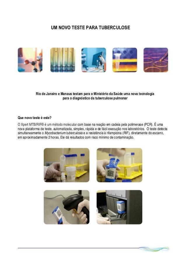 UM NOVO TESTE PARA TUBERCULOSE Que novo teste é este? O Xpert MTB/RIF® é um método molecular com base na reação em cadei...