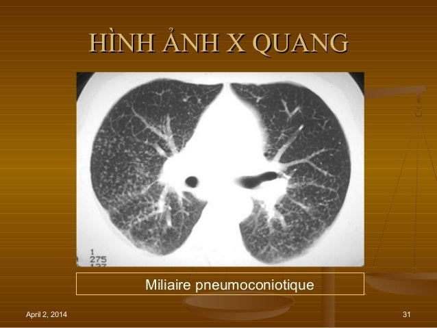 April 2, 2014 31 HÌNH ẢNH X QUANGHÌNH ẢNH X QUANG Miliaire pneumoconiotique