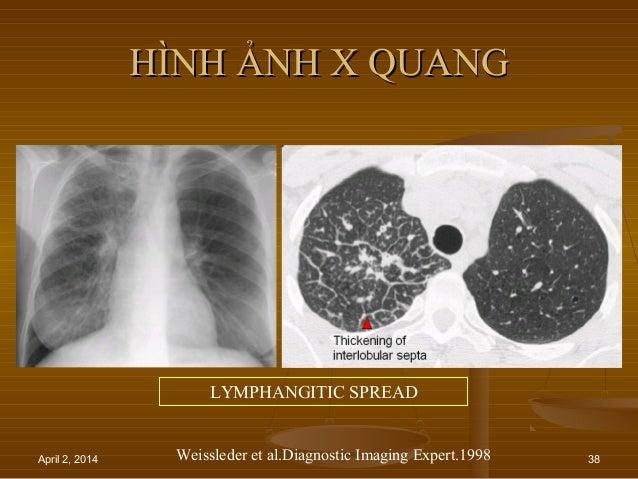 April 2, 2014 38 HÌNH ẢNH X QUANGHÌNH ẢNH X QUANG LYMPHANGITIC SPREAD Weissleder et al.Diagnostic Imaging Expert.1998