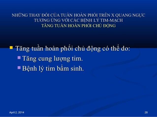 April 2, 2014 28 NHỮNG THAY ĐỔI CỦA TUẦN HOÀN PHỔI TRÊN X QUANG NGỰCNHỮNG THAY ĐỔI CỦA TUẦN HOÀN PHỔI TRÊN X QUANG NGỰC TT...