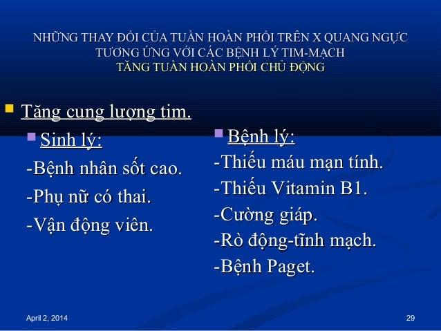 April 2, 2014 29 NHỮNG THAY ĐỔI CỦA TUẦN HOÀN PHỔI TRÊN X QUANG NGỰCNHỮNG THAY ĐỔI CỦA TUẦN HOÀN PHỔI TRÊN X QUANG NGỰC TT...
