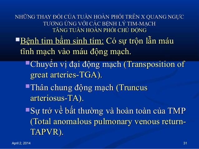 April 2, 2014 31 NHỮNG THAY ĐỔI CỦA TUẦN HOÀN PHỔI TRÊN X QUANG NGỰCNHỮNG THAY ĐỔI CỦA TUẦN HOÀN PHỔI TRÊN X QUANG NGỰC TT...