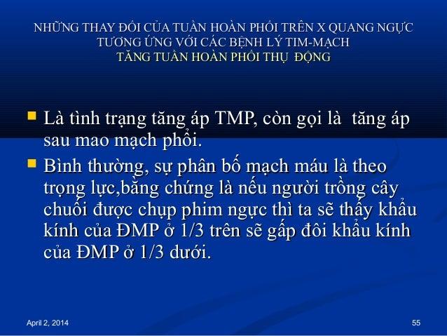 April 2, 2014 55 NHỮNG THAY ĐỔI CỦA TUẦN HOÀN PHỔI TRÊN X QUANG NGỰCNHỮNG THAY ĐỔI CỦA TUẦN HOÀN PHỔI TRÊN X QUANG NGỰC TT...