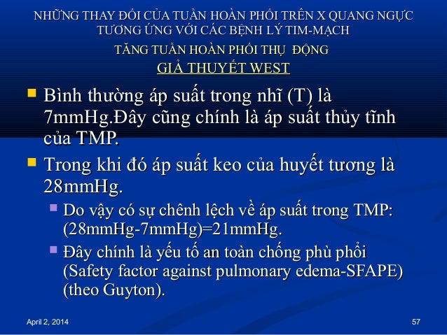 April 2, 2014 57 NHỮNG THAY ĐỔI CỦA TUẦN HOÀN PHỔI TRÊN X QUANG NGỰCNHỮNG THAY ĐỔI CỦA TUẦN HOÀN PHỔI TRÊN X QUANG NGỰC TT...