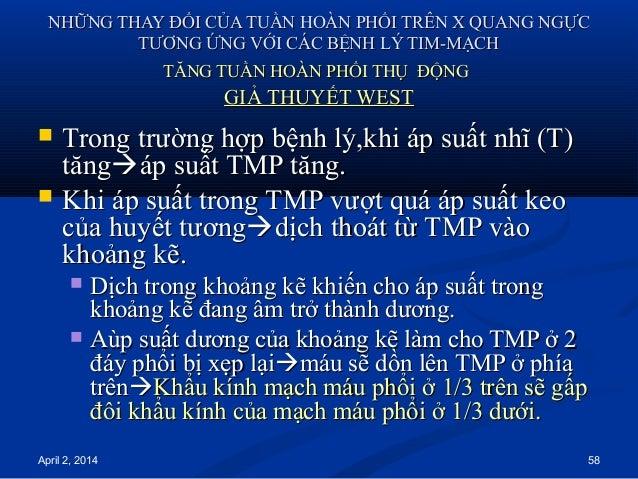 April 2, 2014 58 NHỮNG THAY ĐỔI CỦA TUẦN HOÀN PHỔI TRÊN X QUANG NGỰCNHỮNG THAY ĐỔI CỦA TUẦN HOÀN PHỔI TRÊN X QUANG NGỰC TT...