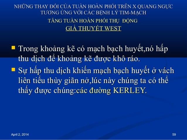 April 2, 2014 59 NHỮNG THAY ĐỔI CỦA TUẦN HOÀN PHỔI TRÊN X QUANG NGỰCNHỮNG THAY ĐỔI CỦA TUẦN HOÀN PHỔI TRÊN X QUANG NGỰC TT...
