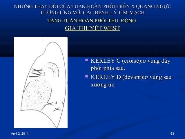 April 2, 2014 63 NHỮNG THAY ĐỔI CỦA TUẦN HOÀN PHỔI TRÊN X QUANG NGỰCNHỮNG THAY ĐỔI CỦA TUẦN HOÀN PHỔI TRÊN X QUANG NGỰC TT...