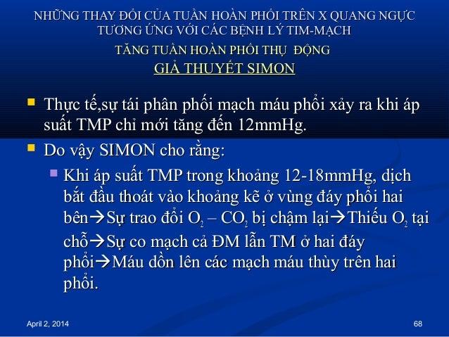 April 2, 2014 68 NHỮNG THAY ĐỔI CỦA TUẦN HOÀN PHỔI TRÊN X QUANG NGỰCNHỮNG THAY ĐỔI CỦA TUẦN HOÀN PHỔI TRÊN X QUANG NGỰC TT...