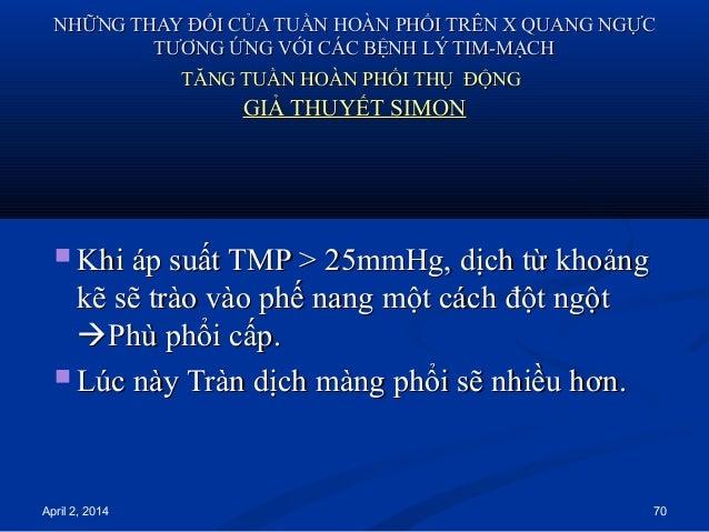 April 2, 2014 70 NHỮNG THAY ĐỔI CỦA TUẦN HOÀN PHỔI TRÊN X QUANG NGỰCNHỮNG THAY ĐỔI CỦA TUẦN HOÀN PHỔI TRÊN X QUANG NGỰC TT...