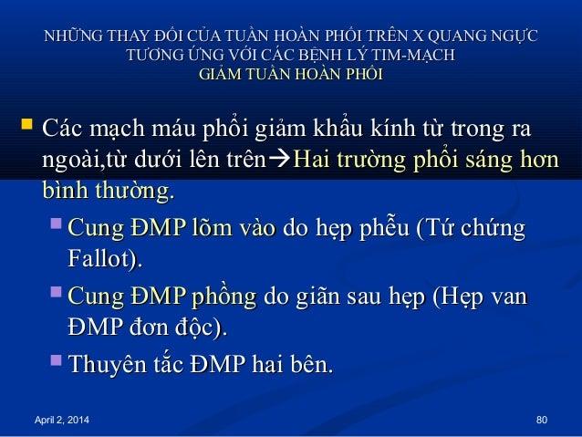 April 2, 2014 80 NHỮNG THAY ĐỔI CỦA TUẦN HOÀN PHỔI TRÊN X QUANG NGỰCNHỮNG THAY ĐỔI CỦA TUẦN HOÀN PHỔI TRÊN X QUANG NGỰC TT...