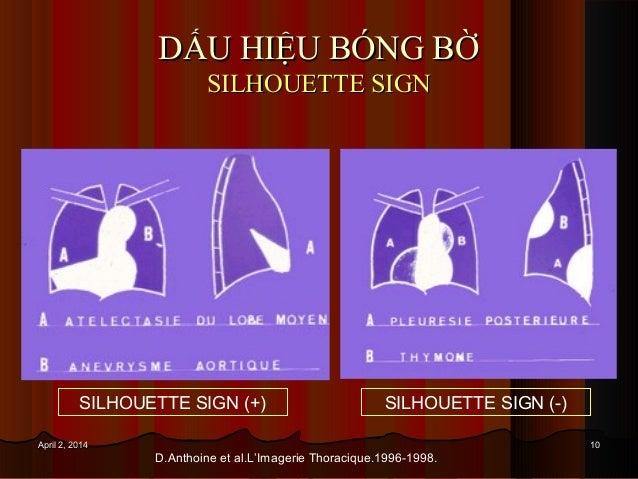 1010April 2, 2014April 2, 2014 DẤU HIỆU BÓNG BỜDẤU HIỆU BÓNG BỜ SILHOUETTE SIGNSILHOUETTE SIGN SILHOUETTE SIGN (+) SILHOUE...