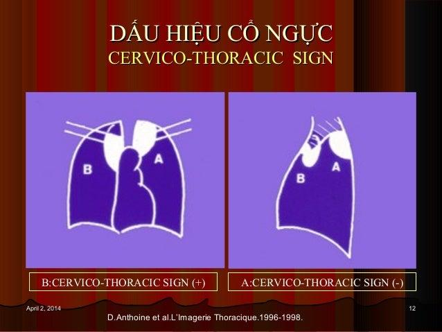 1212April 2, 2014April 2, 2014 DẤU HIỆU CỔ NGỰCDẤU HIỆU CỔ NGỰC CERVICO-THORACIC SIGNCERVICO-THORACIC SIGN B:CERVICO-THORA...