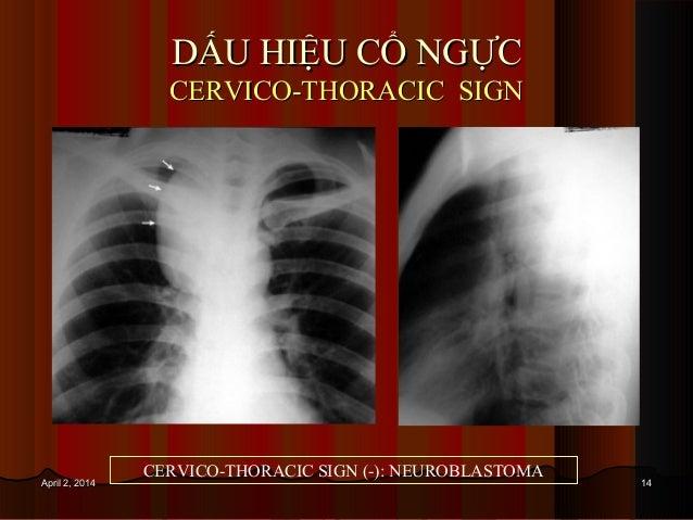 1414April 2, 2014April 2, 2014 DẤU HIỆU CỔ NGỰCDẤU HIỆU CỔ NGỰC CERVICO-THORACIC SIGNCERVICO-THORACIC SIGN CERVICO-THORACI...