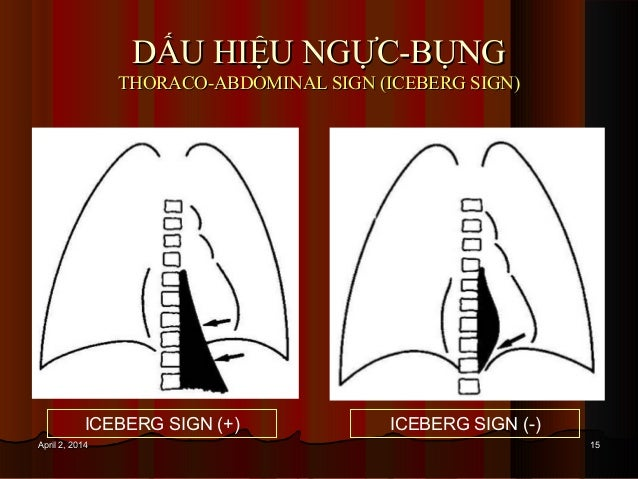1515April 2, 2014April 2, 2014 DẤU HIỆU NGỰC-BỤNGDẤU HIỆU NGỰC-BỤNG THORACO-ABDOMINAL SIGN (ICEBERG SIGN)THORACO-ABDOMINAL...