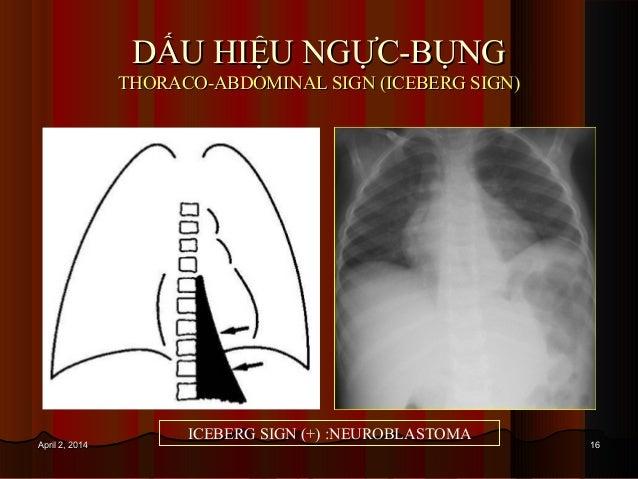 1616April 2, 2014April 2, 2014 DẤU HIỆU NGỰC-BỤNGDẤU HIỆU NGỰC-BỤNG THORACO-ABDOMINAL SIGN (ICEBERG SIGN)THORACO-ABDOMINAL...
